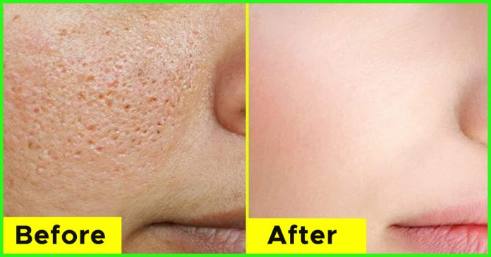 How To Minimize The Appearance Of Large Pores - Grandma's ...
